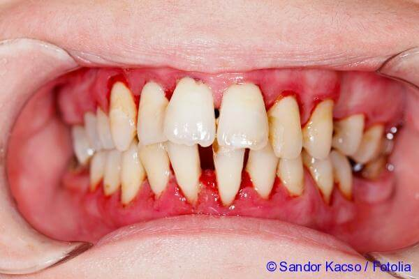 drugs to treat the inflammation of the gums