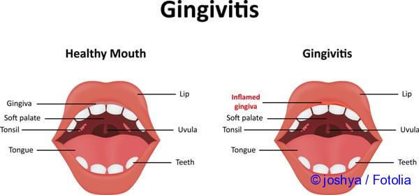 methods for the treatment of inflammation of the gums