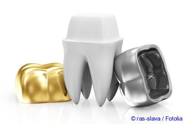 Metal dental crowns