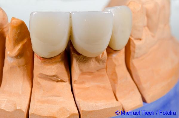 Dentures of metal and ceramics