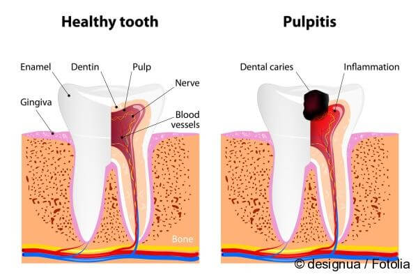 medication with pulpitis