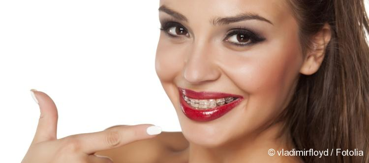 how much do dental braces cost examples of prices