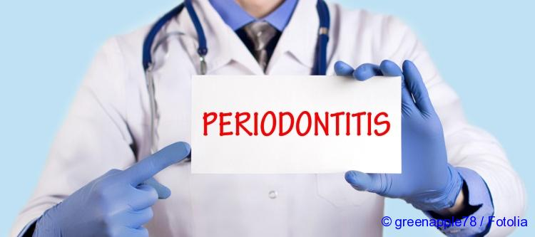 the exact symptoms of periodontitis