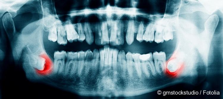 wisdom tooth all symptoms