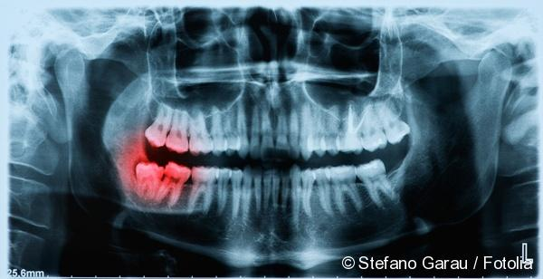 caries can occur due to wisdom tooth