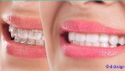 brackets on the teeth image before and after