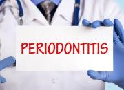 Periodontitis symptoms