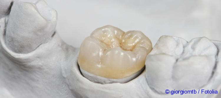 Get a fixed, partial denture made how much does it cost