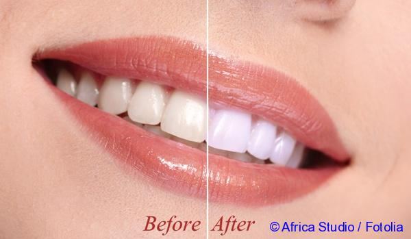 Indications for laser teeth whitening