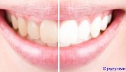 teeth whitening strips crest whitestrips price