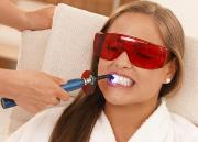 laser teeth whitening reviews prices