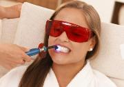 How to whiten your teeth by laser