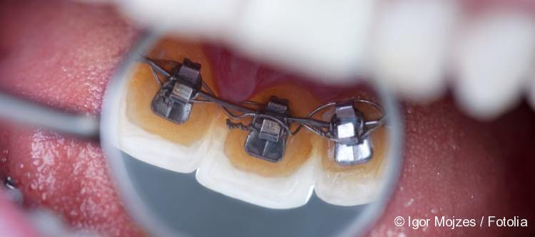 invisible lingual braces price