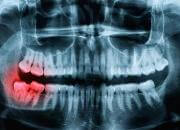 wisdom tooth symptoms