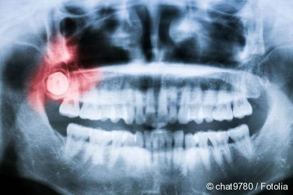 complications eruption of wisdom teeth