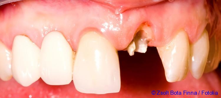 dental grafting prices for people