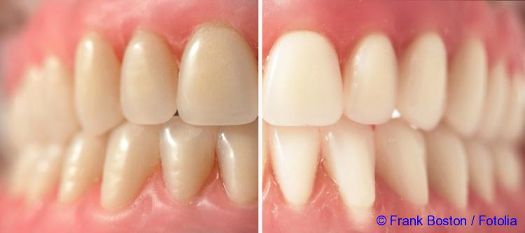 how to bleach teeth quickly at home