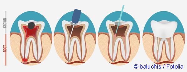 treatment of dental root canal filling