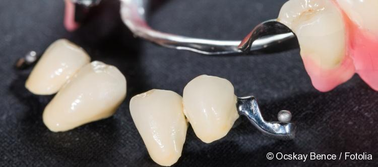clasp dental prosthesis for upper jaw
