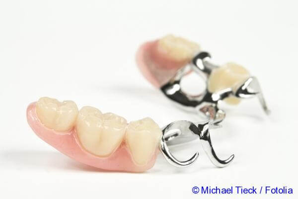 clasps for dentures
