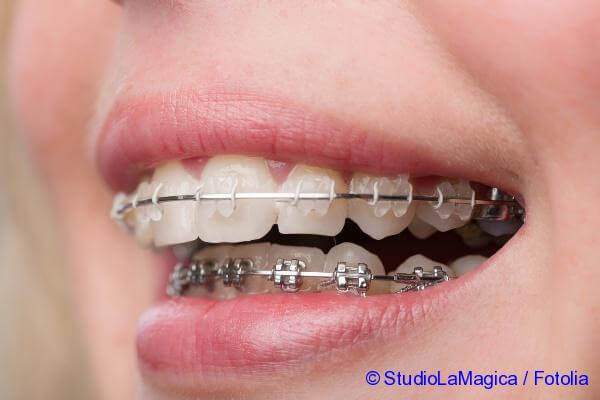 using braces for treatment Distal occlusion