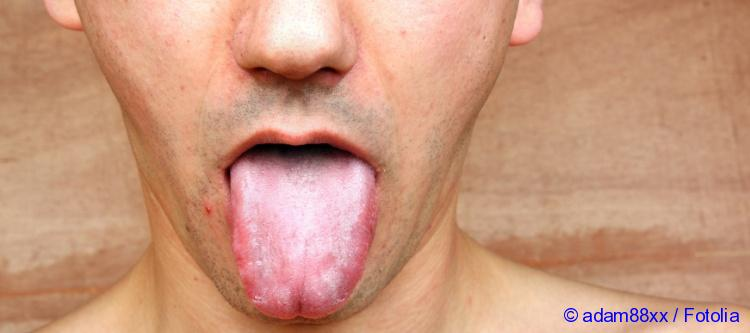 why a white coating on the tongue causes and treatment