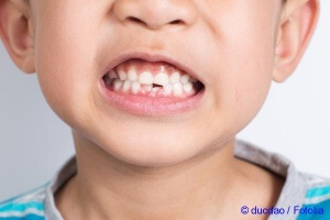 Importance Of Milk Teeth at kids