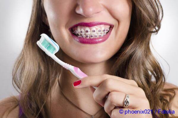 curaprox for braces