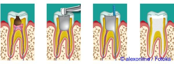 after the removal of nerve and sealing channels there appeared a toothache what to do