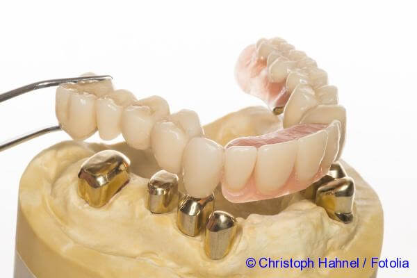 Installation of artificial teeth