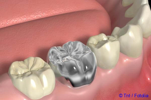 which false teeth are better to insert